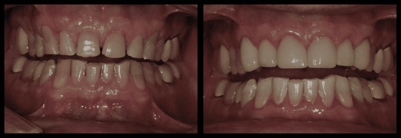 Aesthetic Dentistry Auburn